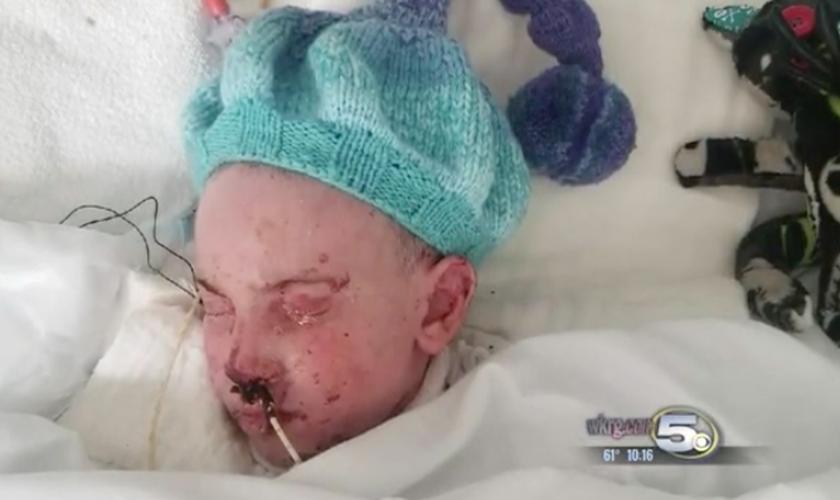 """Menino com síndrome rara viu Jesus no quarto do hospital: """"Ele sorriu para mim"""""""